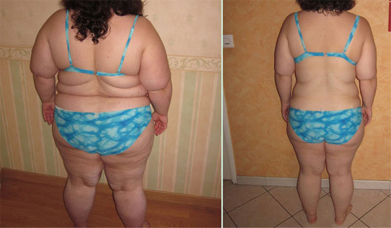 gastric bypass before after