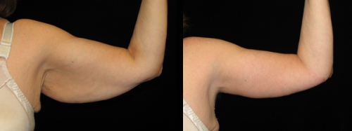 Arm lift before after