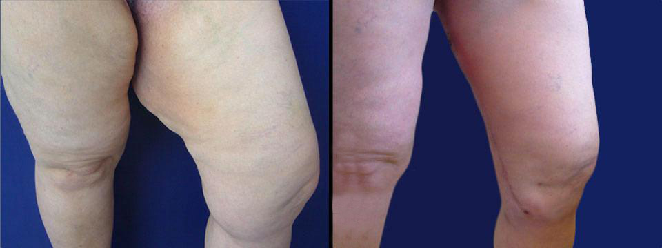 thigh lift before after