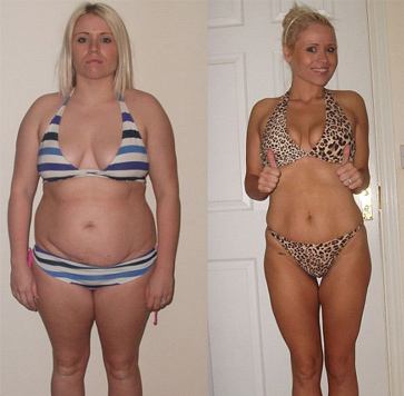 Gastric sleeve before after