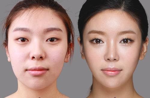 Westernization of the Asian eyelid : before and after