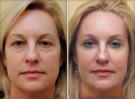 Canthopexy : before and after